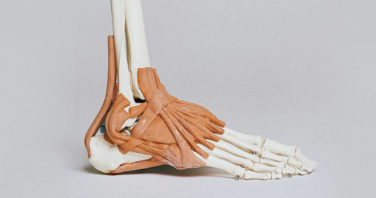 Treatment For Planter Fasciitis