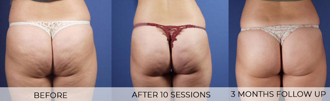 Cellulite Treatment Before and After Photos of Buttocks