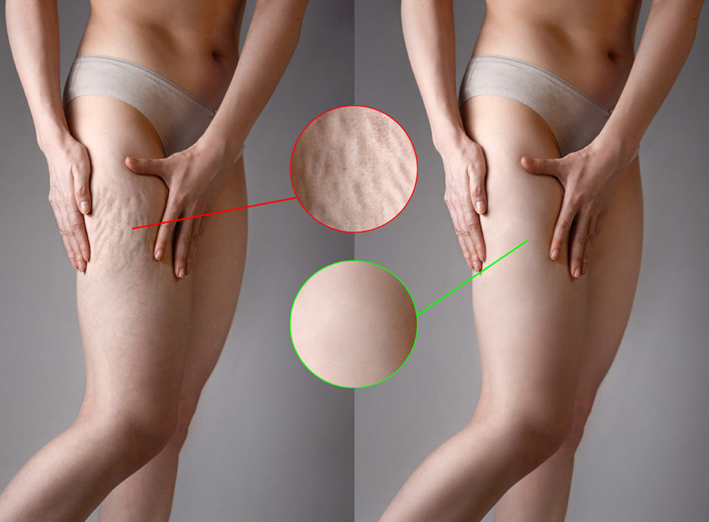 Cellulite Treatment Images