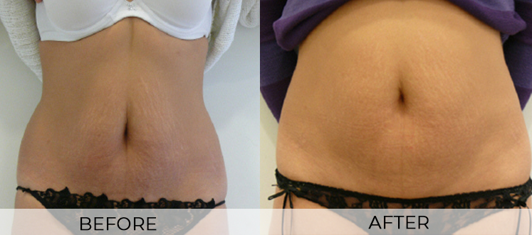 EPAT Aesthetic Treatment of Stretch Marks - Before and After Photos