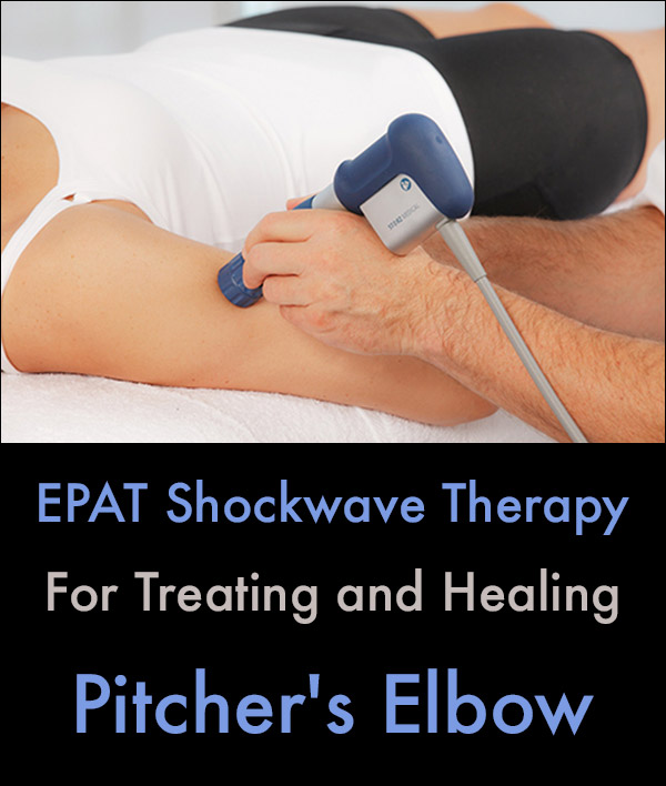 Pitcher's Elbow Treatment EPAT Shockwave Therapy