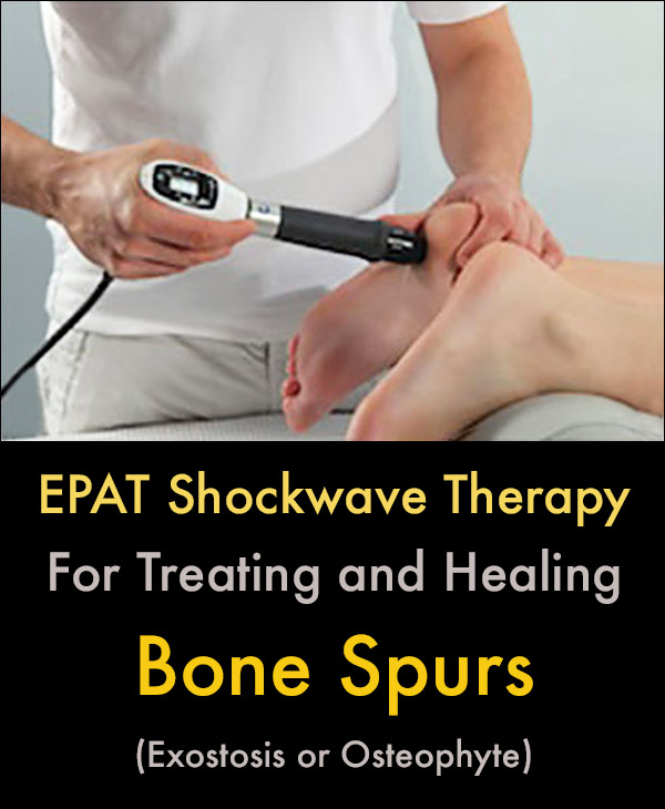 Bone Spur Exostosis Treatment With Shockwave Therapy