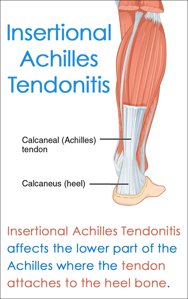 Insertional Achilles Tendonitis