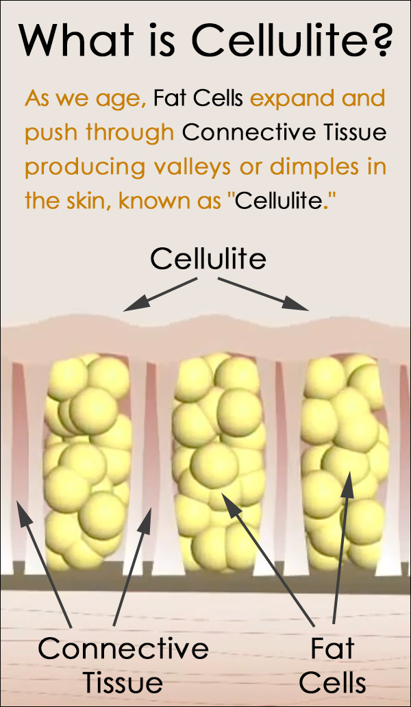 What is Cellulite and What Causes It?