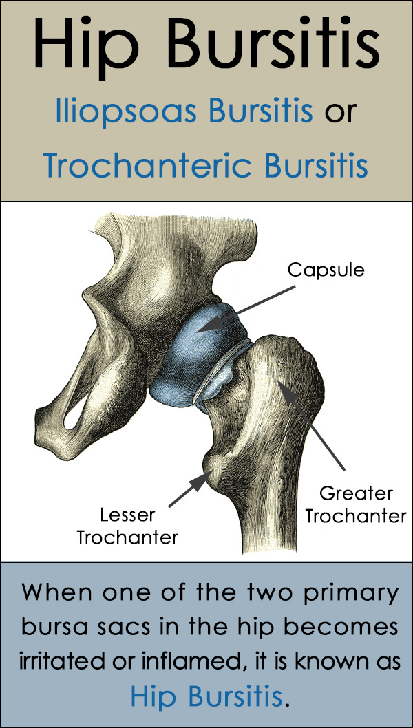 Bursitis of the Hip - Trochanteric and Iliopsoas