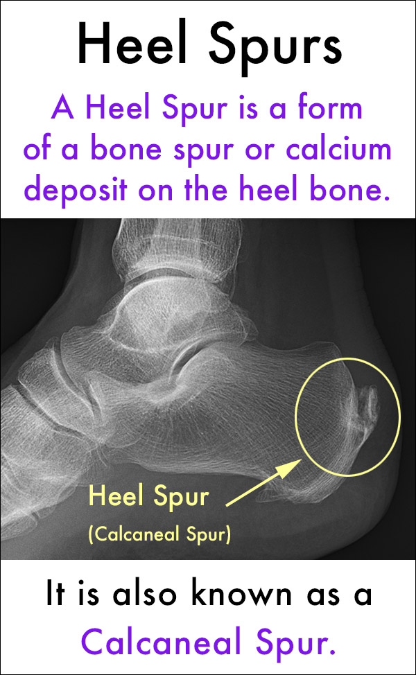 What Are Heel Spurs Calcaneal Spurs?