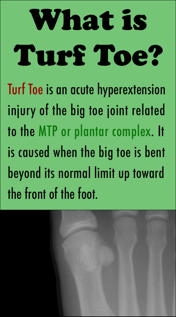 What is Turf Toe?